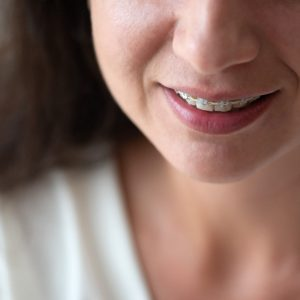 adult woman smiling with clear braces